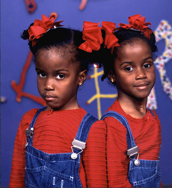Texas Children's surgeons successfully separated Tiesha and Iesha Turner in 1992. The girls were 1 year old when the procedure occurred.